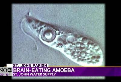 News video: Killer Amoeba Found in Louisiana Water System